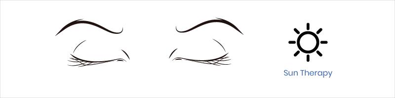 eye exercise sun therapy
